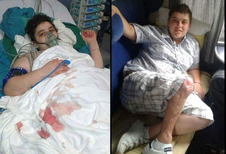 Ana-Maria pe patul de spital (stânga) și în tren, spre București, cu piciorul afectat în prim-plan-Foto preluat de pe site-ul tolo.ro