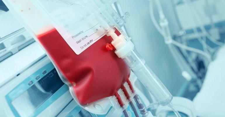 Echipament de plasmafereză pentru donatori.Foto:Ro Health Review